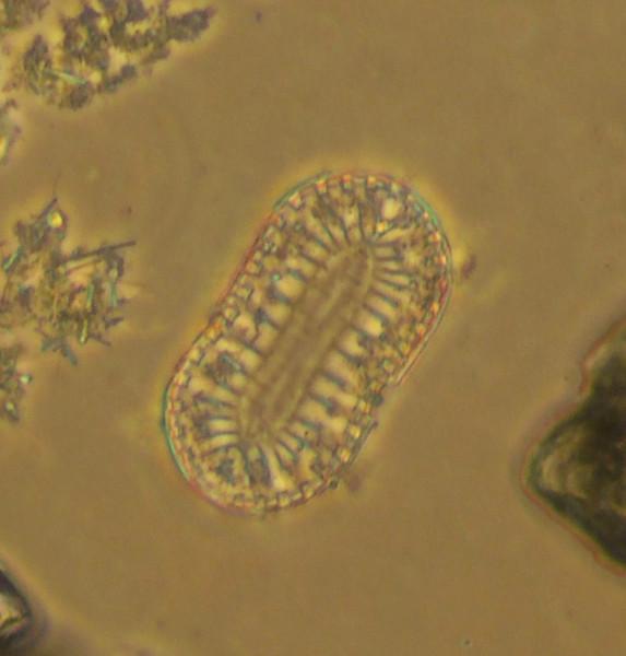 Coccolithophore plate (?)