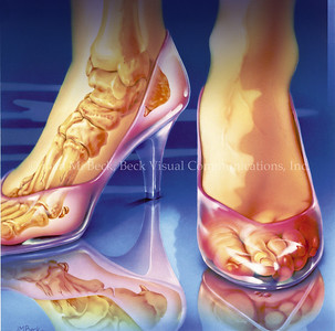Cinderella's Feet- Treating Foot Ailments Editorial Created by Joan M. Beck Copyrighted material-do not copy