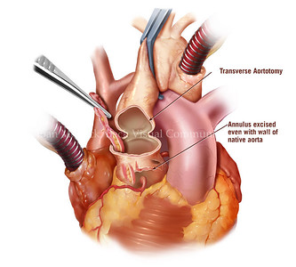 Removal of native aortic valve leaflets Created by Joan M. Beck Copyrighted material-do not copy