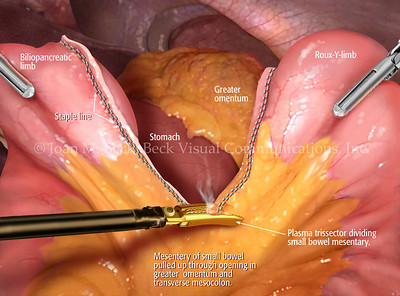 Endoscopic surgery of the Small Bowel I  Created by Joan M. Beck Copyrighted material-do not copy