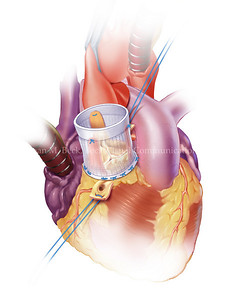 Aortic Valve Replacement Surgery  Created by Joan M. Beck Copyrighted material-do not copy