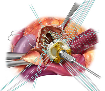 Implantation of SJM Epic valve Aortic Valve Replacement Surgery  Created by Joan M. Beck Copyrighted material-do not copy