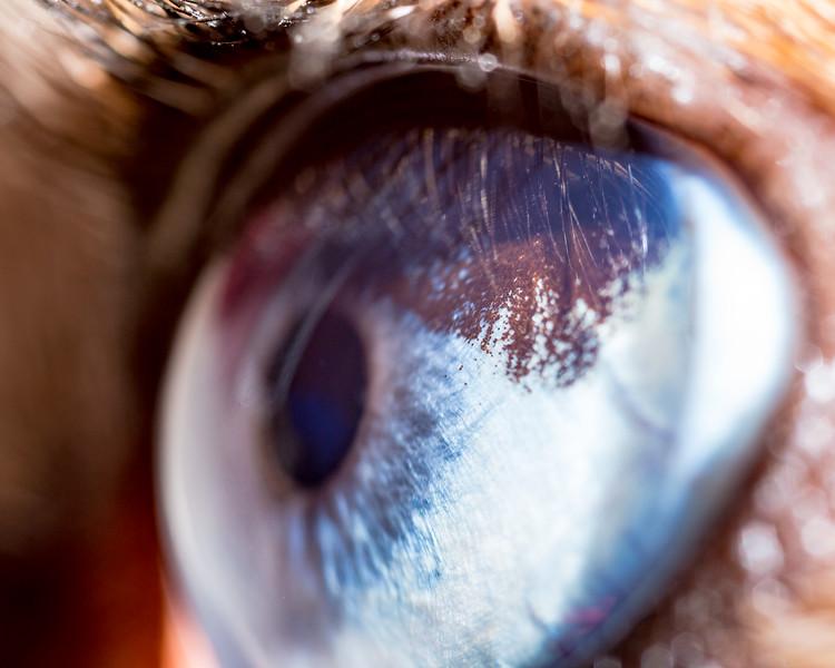 Maya's Eye Freckle