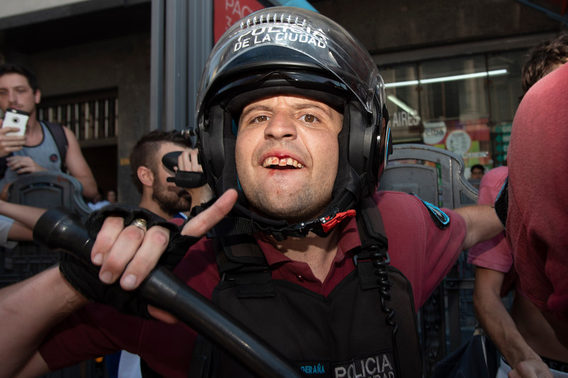 An officer with Policia de la Ciudad shows off his wounds after a conflict during a protest in Buenos Aires, Argentina on February 20, 2019. | Colin Boyle/Infobae