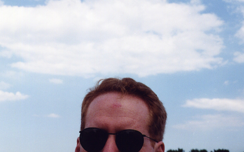 Eric (growth on forehead removed)