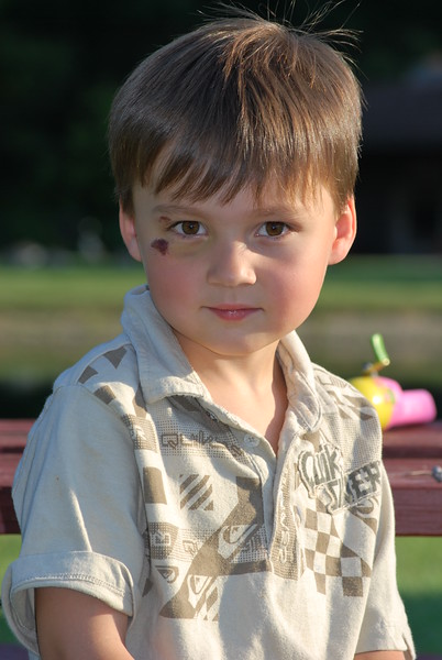 First Black Eye. .... August 2008...5 years old