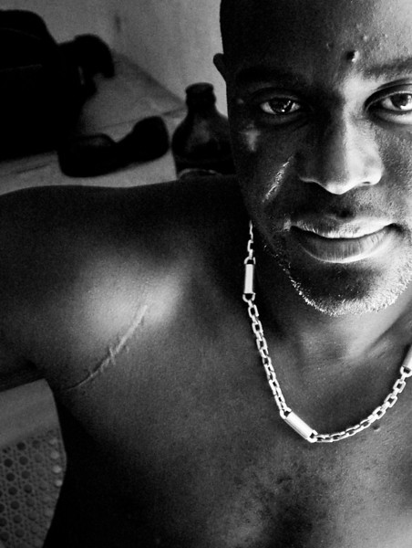 Haitian Mafia / Politician, showing scars done by a machete fight in prison, ending in the death of his opponent, Port-Au-prince, Haiti, June 2011.