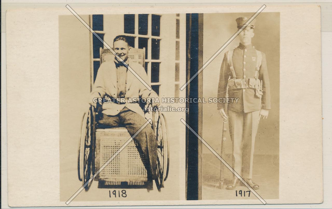 World War I Amputee