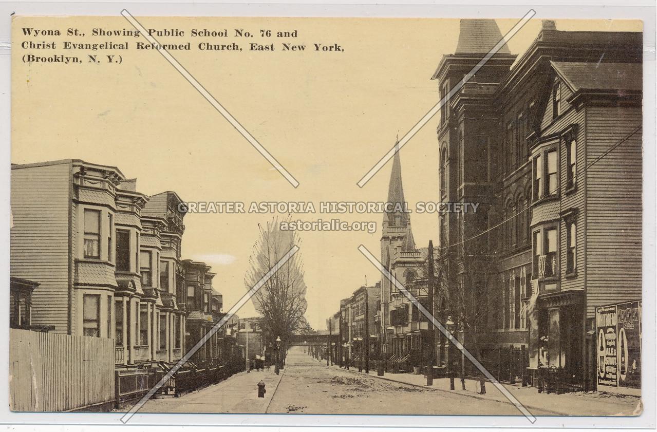 Wyona Street, East New York, BK.