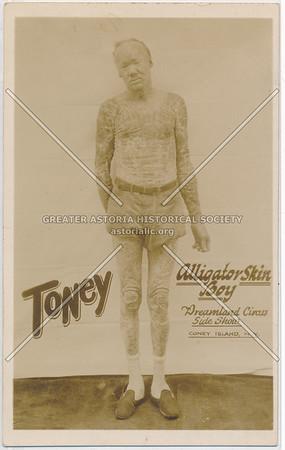 Toney -- Alligator Skin Boy, Dreamland Circus Side Show, Coney Island, N.Y.