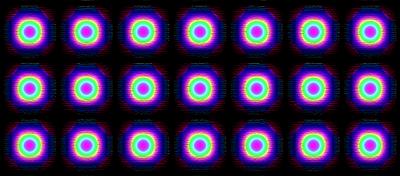 Mateo Pattern