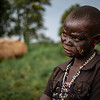 8. DR Congo: Anne, survivor of an attack on her village with burn marks on her face