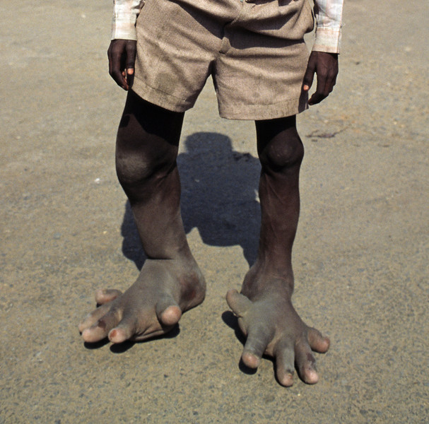 L1541 Elephantiasis is associated with a mosquito borne worm blocking the lymphatic system. Elimination may be possible by 2020. Agra.