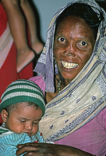 L0908 Leprosy is caused by a bacteria in the upper respiratory system