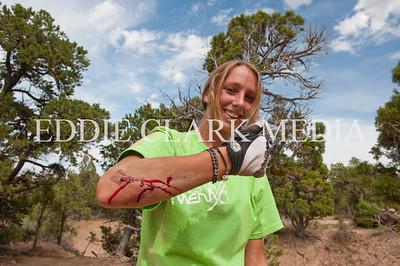 Katie Hayes- No worries, it's just a flesh wound.