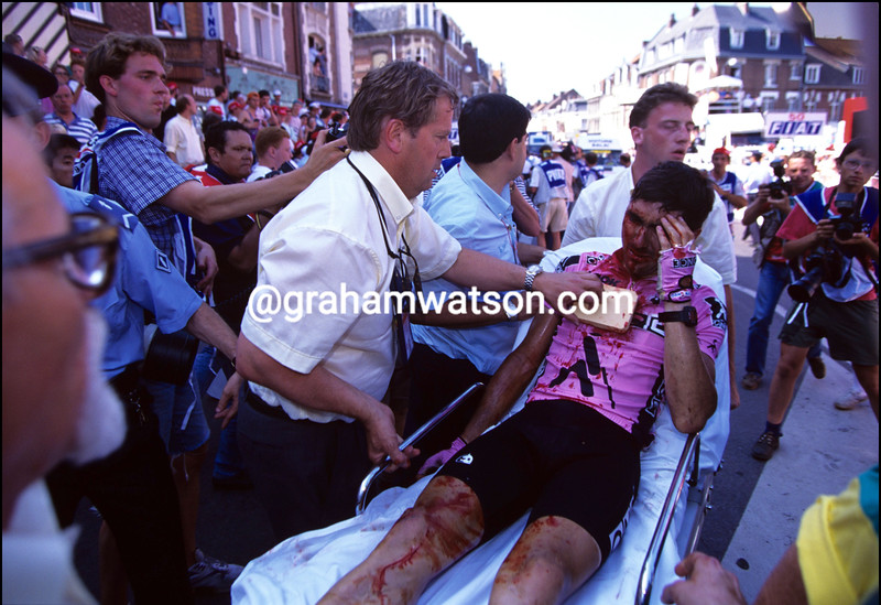 Laurent Jalabert after a crash in the 1994 Tour de France