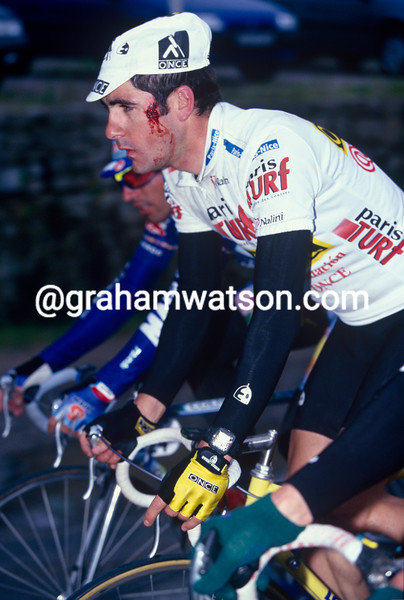 Laurent Jalabert after a crash in the 1996 Paris-Nice