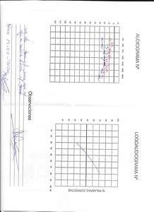 Audiometria 19-2-2020 2