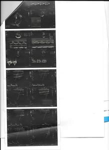 Ecodopler cuello y ecocardiograma 17-2-2020 3