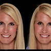Cosmetic simulation - smile replacement