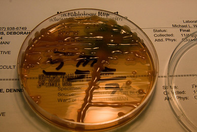 Mucoid bacteria colonies on agar plate.