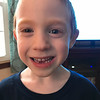 Day 15 (1/12/2018): Another lost tooth