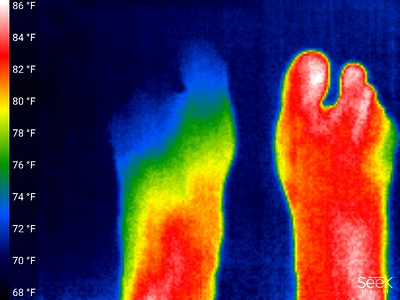 Right foot swollen, left foot about 5 F cooler where r.foot swollen