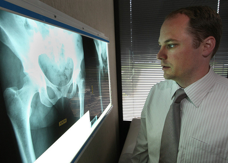 Dr. Troy Glaser of the Central States Orthopedic Specialists read a set of X-Rays.