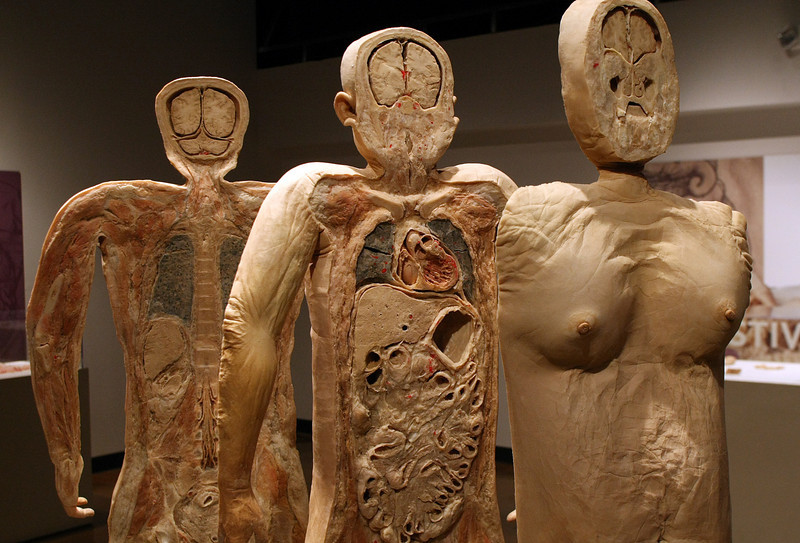 The Bodies exhibit in Tulsa uses Actual human bodies that are preserved and then presented for study.  <br /> <br /> *** Editor this is a photo of an overweight woman ~ you can see the layers of fat in the body cavity ***