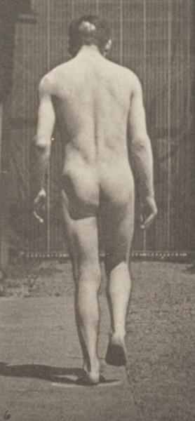 Nude man with locomotor ataxia walking