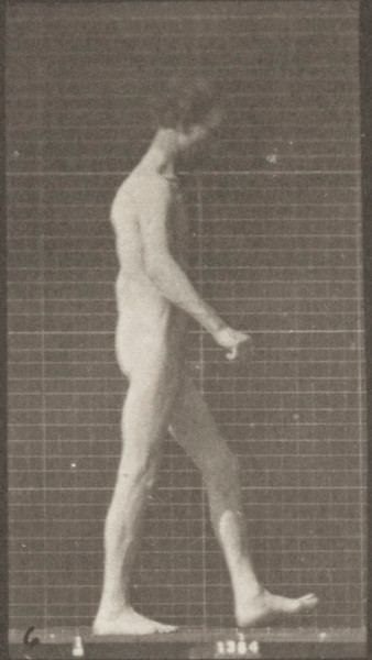 Nude man with locomotor ataxia walking