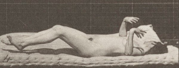 Nude woman lying down and having artificially induced convulsions