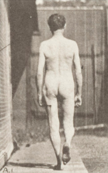 Nude man with locomotor ataxia walking with both arms up and down
