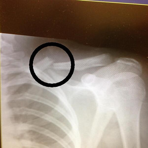 2013-09-06 RRGS - Bella's Xray - with circle