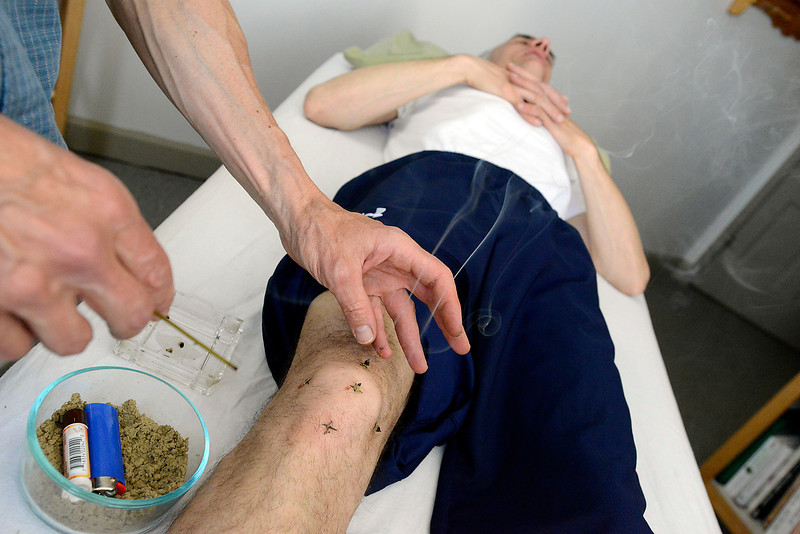 Acupuncturist James Damman uses a technique called moxibustion, burning the herb mugwort on the knee of his patient, Dr. Alex Rowell, at his Loveland office on Tuesday, May 14, 2013.