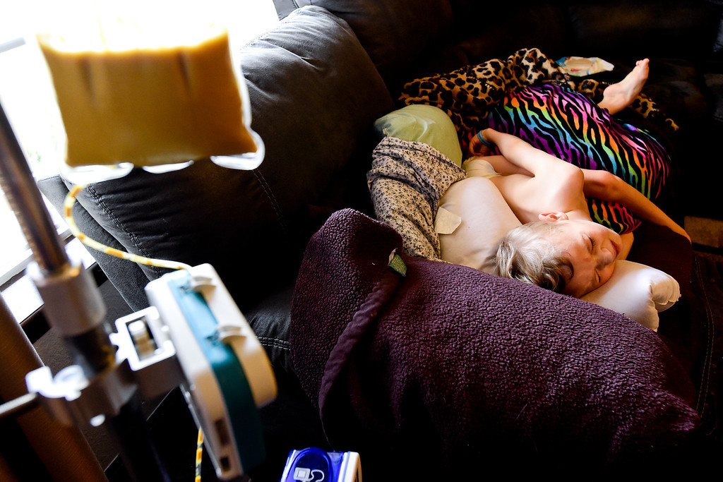 . Riley Heasley lies on the couch while eating from a feeding tube at their home in Mead, Colorado on June 27, 2018. Riley has Pantothenate Kinase-Associated Neurodegeneration, also known as PKAN, a rare nerve disease which causes iron to accumulate in the brain. (Photo by Matthew Jonas/Staff Photographer)
