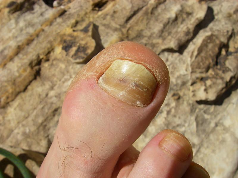 toe pain!