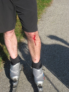 Rollerski accident? Nope. Yvon fell off the retaining wall that leads from JP Penny's (parking) to the trail head...