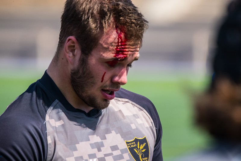Mason Fuller gets healed up on the sidelines after rough skirmish with Missouri at the rugby match vs Missouri (Dalton Wainscott l Collegian Media Group)