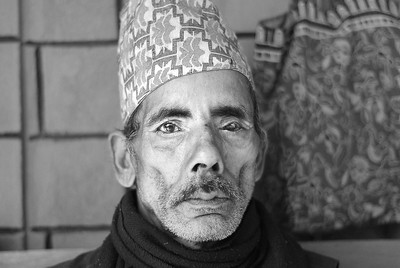 fter suffering from an episode of typhoid fever this man lost the use of his left eye.