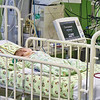 детка после операции на сердце. Baby in ICU following had heart surgery.