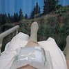 Sharon with Ice Pack