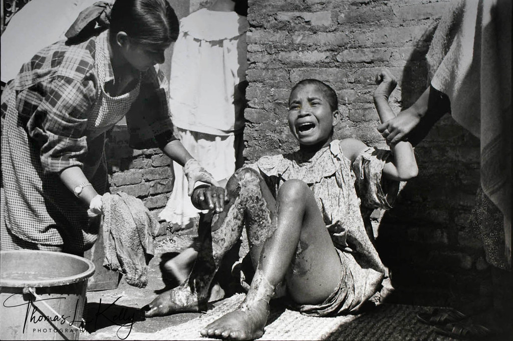 PRECIOUS LIFE<br /> Without the protection of madams, peers and pimps usually fournd in brothel<br /> communities, 'floating' prostitutes are at high risks of serious abuse and HIV/AIDS.<br /> This floating prostitute was gang raped, doused with kerosene and burned on a city<br /> street. Despite the efforts of physicians and the rehabilitation center Maiti Nepal. She<br /> died two weeks later.<br /> Kahtmandu, Nepal