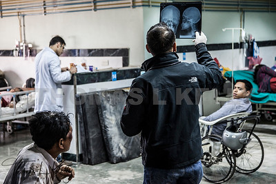 Doctor examining injured skull x-ray at Kathmandu trauma.