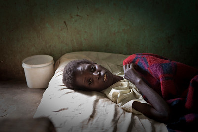 another woman suffering from TB and HIV