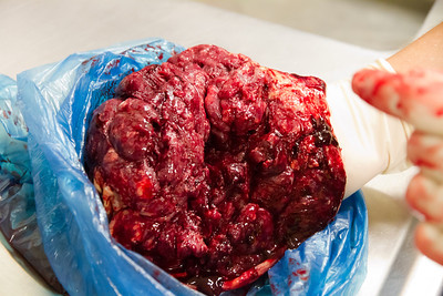 Margaret's (Mummy's) Side of the Placenta