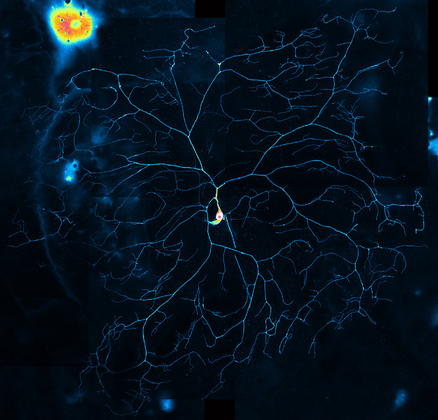 Image of a neuron courtesy of Daniel N. Cox.