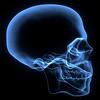 skull x-xay 11480.tif