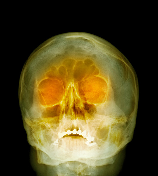 Shotgun injury, X-ray