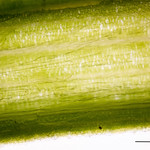 Upper Epidermis of a Leaf from an Iris